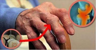 ¡Asombroso! Después de tomar este remedio, esta mujer elimina agonizante dolor de las articulaciones ¿Qué no le permitía moverse! ~ La Buena Salud Es Vida