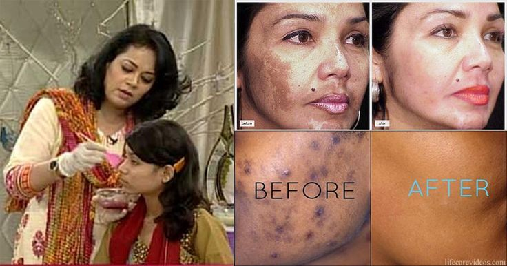 Home Remedy Get Rid of Dark Spots and Freckles on Face Dark Spots and Freckles on Face are big embarrassments for many people especially girls and women. They use many expensive market products like scrubs, masks, face washes and many others. But natural things have their own results and results. Today I am going to ...