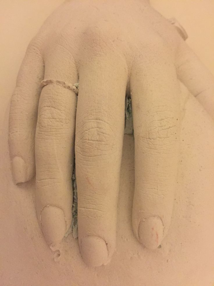 Cast of hand