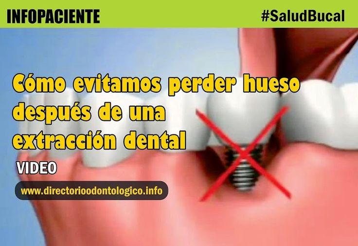 extraccion-dental