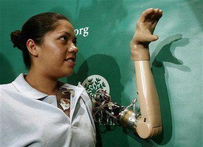 tangan palsu bionic | DOPS