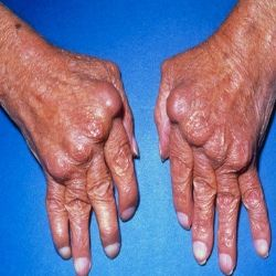 Remicade Medications For Rheumatoid Arthritis.  Looking at this picture scares me to death.  I know I do not have RA this bad, but in another 40 years maybe my hands will look like this.  :-(
