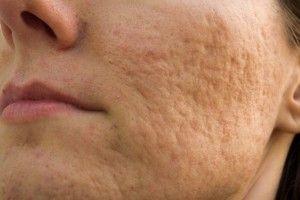 Cómo curar las cicatrices por acné