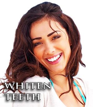 There is no better accessory than a warm bright smile. Whiten your teeth naturally as described here.