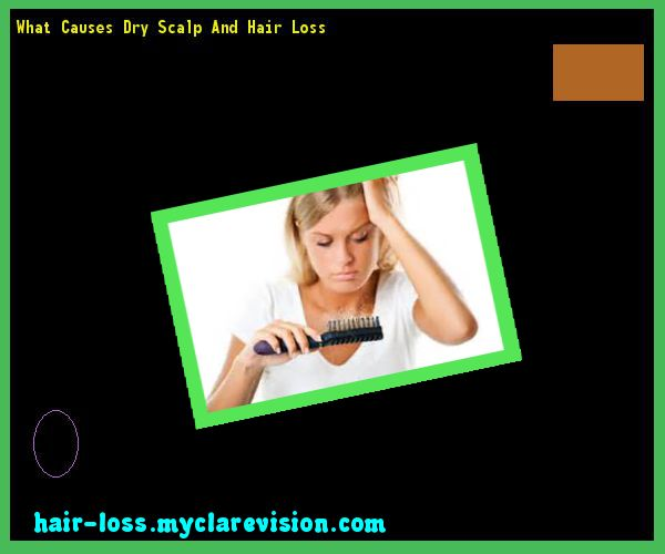 What Causes Dry Scalp And Hair Loss 124843 - Hair Loss Cure!