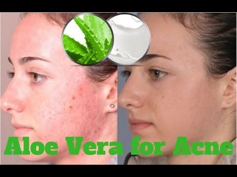 how to clear acne for good