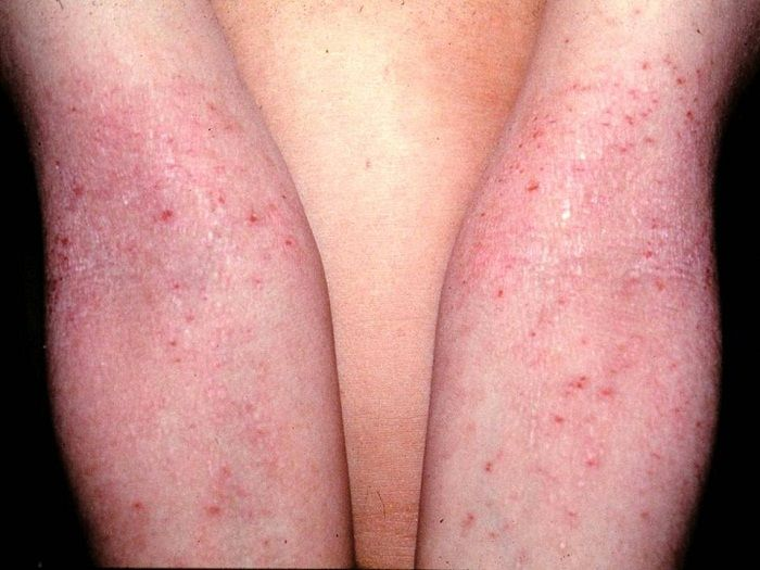 Basal Serum Cortisol and Adrenocorticotropic Hormone Levels in Patients with Atopic Dermatitis @http://www.omicsonline.org/open-access/basal-serum-cortisol-and-adrenocorticotropic-hormone-levels-in-patients-withatopic-dermatitis-2155-6121-1000236.php?aid=78391