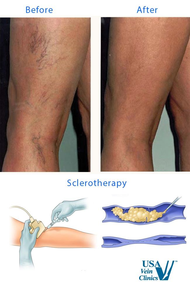 24 best sclerotherapy - vein treatment images on pinterest, Cephalic Vein