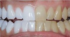 He Whitens His Teeth Using 1 Common Household Ingredient. I Can't Believe How Easy This Is!