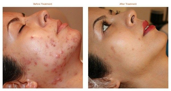 FORGET Expensive Products Naturally Remove Acne Scars!