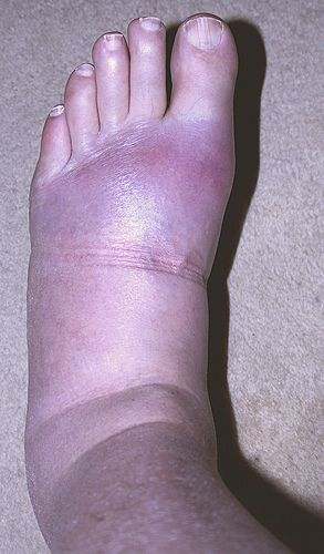 If you have gout, don't worry. There are many gout remedies and you can choose one to suit your needs and requirements.    Read more: http://homeremedieslog.com/health-topics/arthritis/gout/remedies-23/