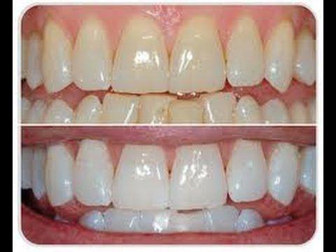 Cómo BLANQUEAR los DIENTES en 3 PASOS / Natural Teeth Whitening (+lista ...