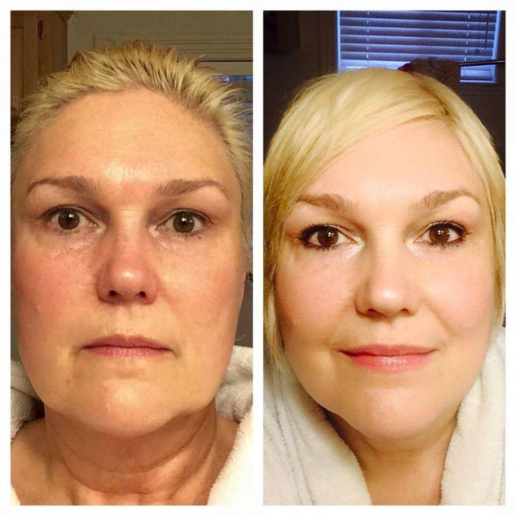 Weer een succes verhaal van groot product Luminesce:  Deze 54-jarige vrouw lijdt aan donkere vlekken door hyper pigmentatie, slappe huid rond de kin en bovenste oogleden en extreme veroudering in halsgebied... diepe rimpels en slappe huid... Maar zie na 60 dagen gebruik het grote verschil.  In 60 dagen een gezondere huid wie wil dat nu niet!  Voor meer info stuur maar een berichtje en ik zal alle vragen beantwoorden