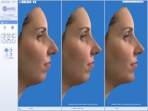 Vectra 3D Imaging Systems from Canfield, Inc. allows plastic surgeon and patient to visualize a surgical result prior to surgery.