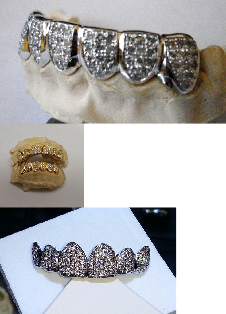 Grillz Dental Grills 152808: 14K Solid Yellow Gold Custom Fit 6Pc Bottom Real Diamond Grillz Gold Teeth BUY IT NOW ONLY: $999.0