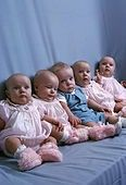 The Fischer Quintuplets, born in Aberdeen, South Dakota on September 14, 1963, were the first set of quints to survive in the United States and one of the first few in the world.   They were natural quints, not conceived with fertility drugs.  They recently turned 50 years old!  In this photo from a Saturday Evening Post Magazine photo shoot, the babies are about 6 months old.  L-R:  Mary Ann, Mary Magdalene (Maggie), James Andrew (Jimmy), Mary Catherine (Cathy), and Mary Margaret (Margie).