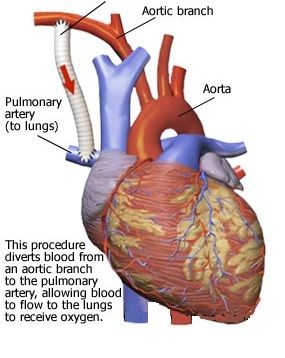 BT Shunt - Blalock-Taussig shunt - Palliative shunt between the subclavian artery and Pulmonary artery
