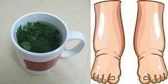 Obrzęk nóg może wystąpić z różnych powodów: ciepło, problemy z naczyniami krwionośnymi, niewydolność nerek, ciąża, niewydolność serca, zaburzenia hormonalne.