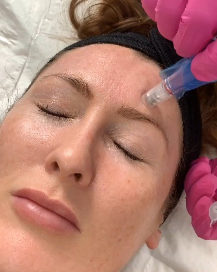 Digital Microneedling Training Weds 14th Aug 10am 499 Includes All Facial Training Kit And How To Treat Ac In 2020 Microneedling Facial Dermapen