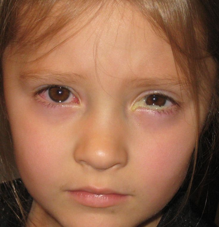 Allergic Conjunctivitis Vs Bacterial Pictures To Pin On: 10+ Images About Pink Eye On Pinterest