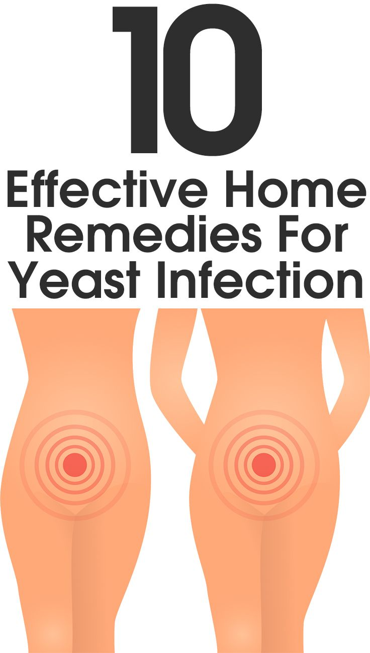 10 Effective Home Remedies For Yeast Infection