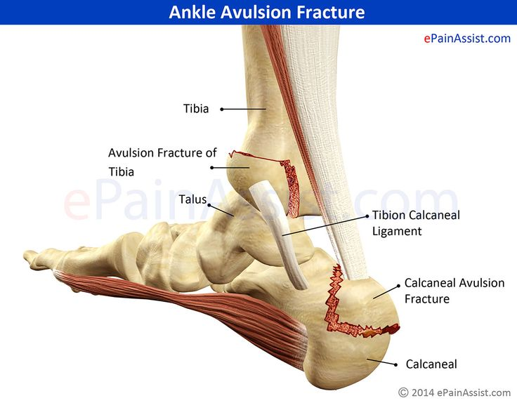 Ankle Avulsion Fracture Read: http://www.epainassist.com/sports-injuries/ankle-injuries/ankle-avulsion-fracture-symptoms-causes-treatment