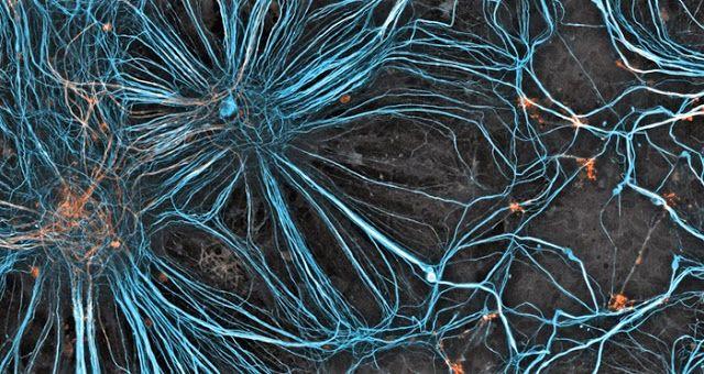 Des cellules en croissance dans le cerveau d'un embryon de souris, observées en microscopie confocale. (200x) - Beautiful Science #2 : 50 images scientifiques extraordinaires, le voyage continue ! ~ Sweet Random Science