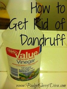 how to get rid of wet dandruff