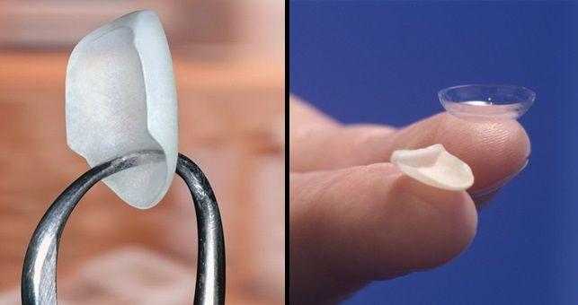 Carillas Lumineers Jpg 643 340 Dental Silver Rings Silver