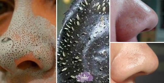 Punti neri: come eliminarli con il bicarbonato di sodio | Rimedio Naturale