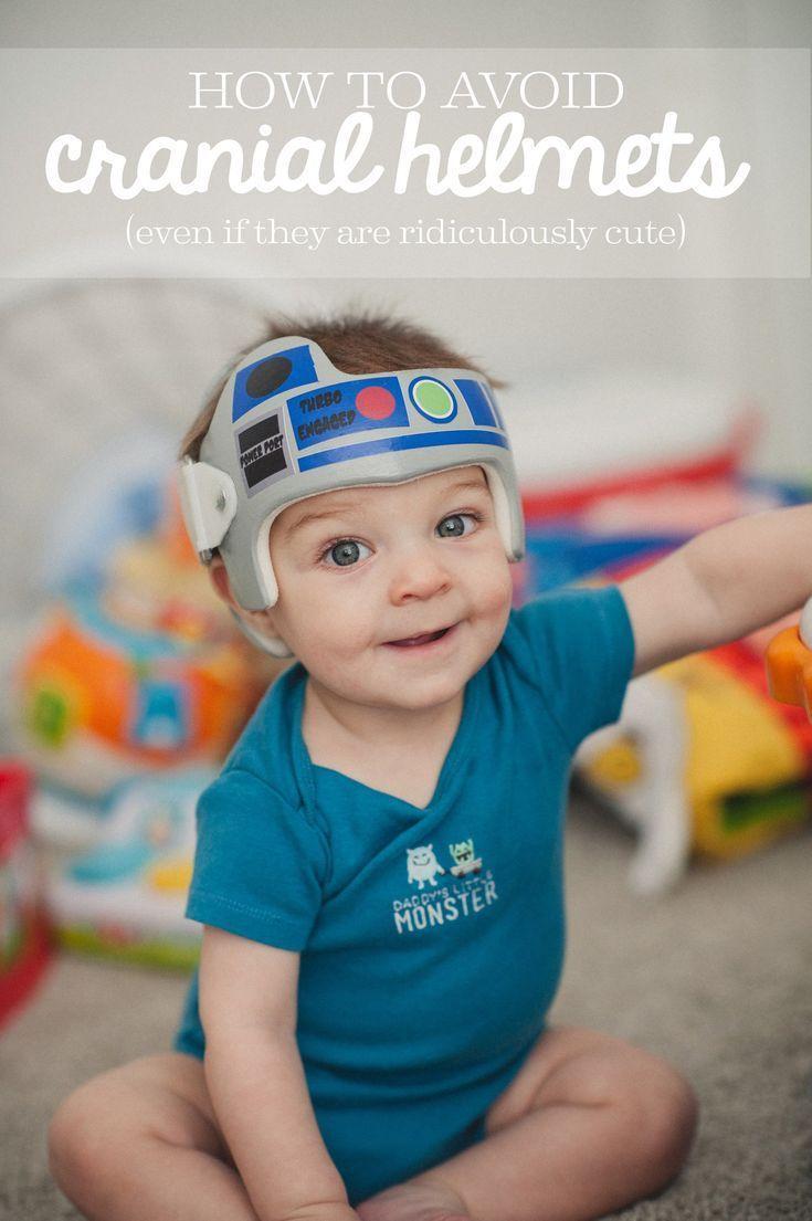 Baby Psa Plagiocephaly Baby Helmet Helmet Torticollis