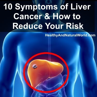 10 Symptoms of Liver Cancer and How to Reduce Your Risk