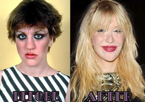 1000+ images about Celebrity Before and After on Pinterest ...