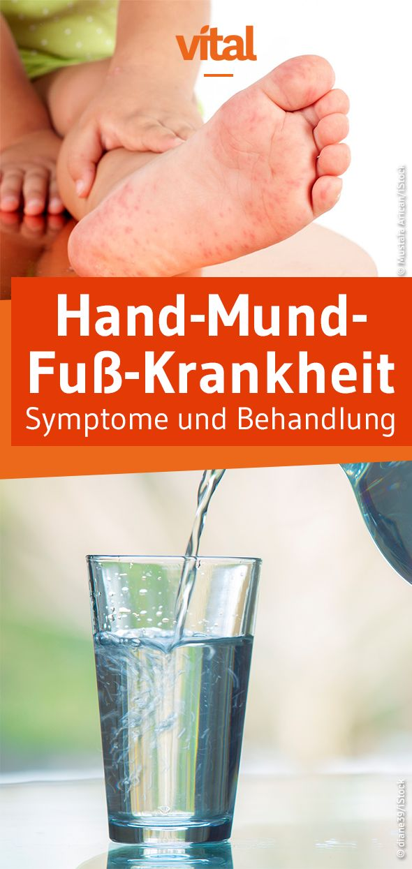 Hand-Mund-Fuß-Krankheit