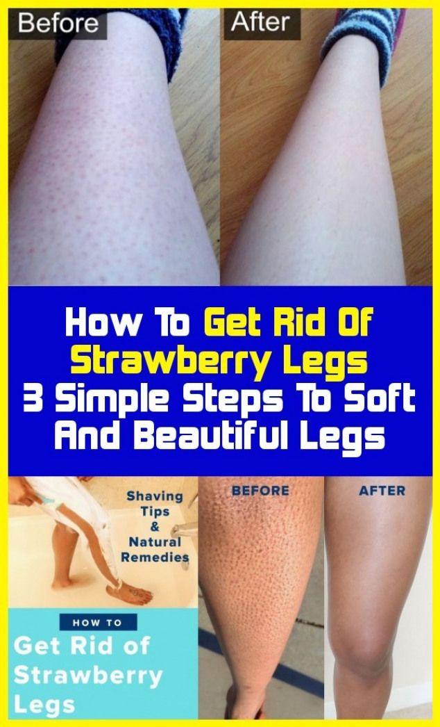 4426be8922c43a68483db6efdb0661c1 - How To Get Rid Of Blue Marks On Legs
