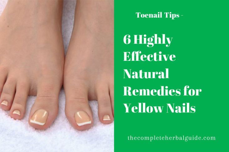 6 Highly Effective Natural Remedies for Yellow Toenails