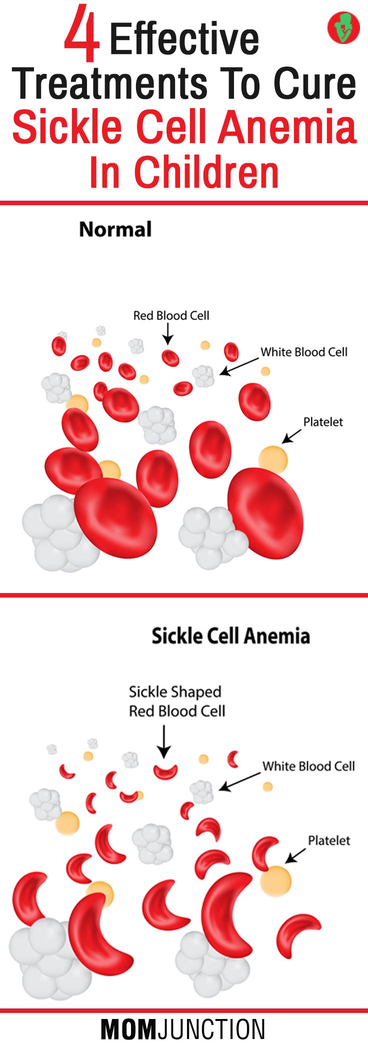 sickle cell anemia research paper outline Essays - largest database of quality sample essays and research papers on research paper on sickle cell anemia.