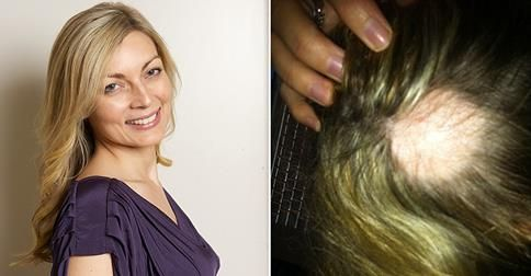 """The 2-inch bald patch that shattered my whole world"" - this woman's story of alopecia areata"