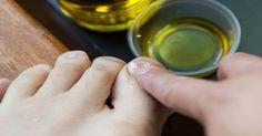 2 remédios caseiros para você eliminar definitivamente fungos nas unhas | Cura pela Natureza