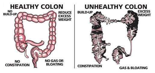 Find out why you should cleanse your colon. Are you aware of the benefits of a cleanse?