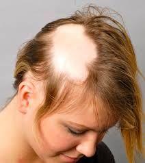 АЛОПЕЦИЈА АРЕАТА – ОПАЃАЊЕ НА КОСАТА ВО КРУГОВИ Станува збор за автоимуно заболување на косата. Блага форма со појава на полиња без коса. Почнува со појава на мали полиња со изгубена коса кои постепено се поврзуваат и формираат поголеми полиња. Кожата во полето е мазна, бледа и стаклесто отсјајува, без ниту едно влакно.За да продолжите со читање кликнете на фотографијата...