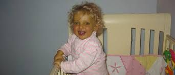 alagille syndrome - Google Search