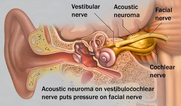 Acoustic Neuroma (vestibular schwannoma) - Causes, Diagnosis, Treatment and Ongoing care - Slow-growing benign tumor, most often arising from the vestibular division of 8th cranial nerve  Read more: http://health.tipsdiscover.com/acoustic-neuroma-vestibular-schwannoma-causes-diagnosis-treatment-and-ongoing-care/#ixzz2VTZKwhNj