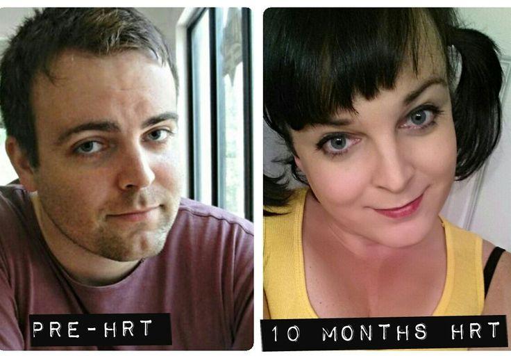 Before after transition transgender