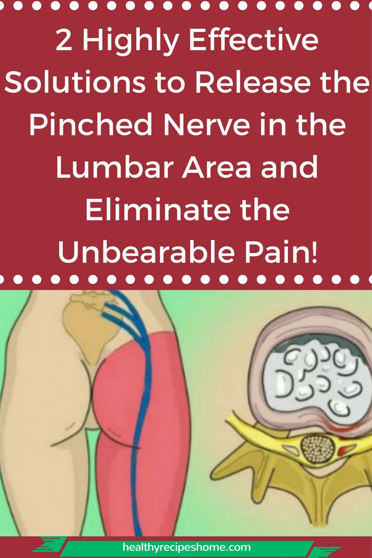 how to fix a pinched nerve in foot