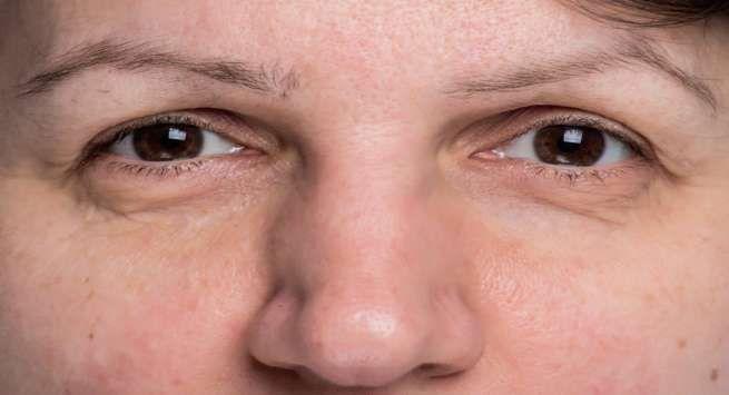 Reasons for eyebrows thinning and eyebrow hair loss