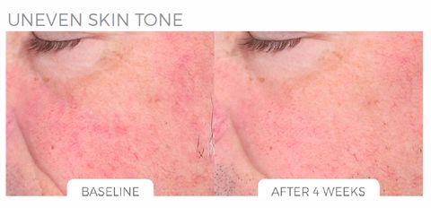 how to help uneven skin tone
