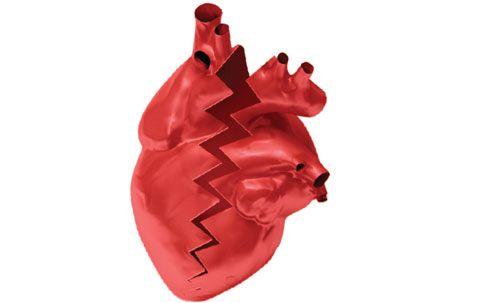 Síndrome do Coração Partido Coração partido é uma metáfora comum usada para descrever a intensa dor psicológica ou sofrimento que a pessoa sente depois de perder um amado, por morte, divórcio, fim de relacionamento, separação, traição ou amor não correspondido via @minenfermagem
