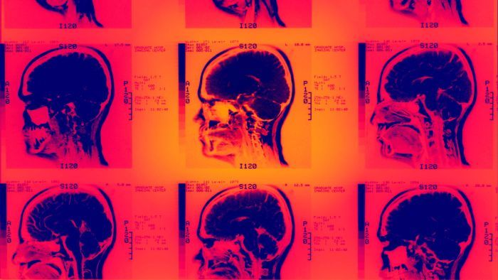 How the internet may be changing your brain