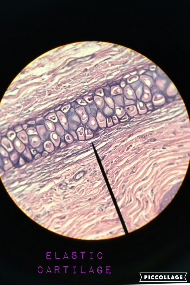 35 best A&P Histology images on Pinterest | Hair follicles, Thick ...